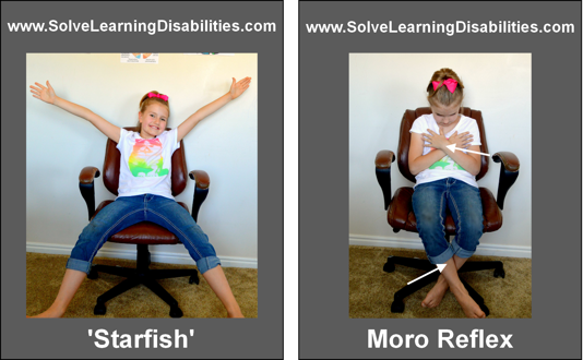 Retained Moro Reflex test