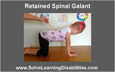 Galant Reflex Retained Spinal Galant...