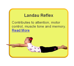 Retained Landau Reflex
