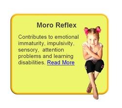 Retained Moro Reflex